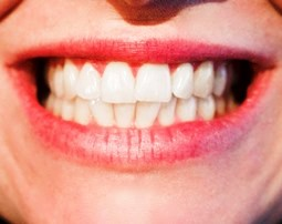 smile with white teeth by Palmer Alaska dental hygienist